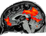 Forum of resting-state fMRI